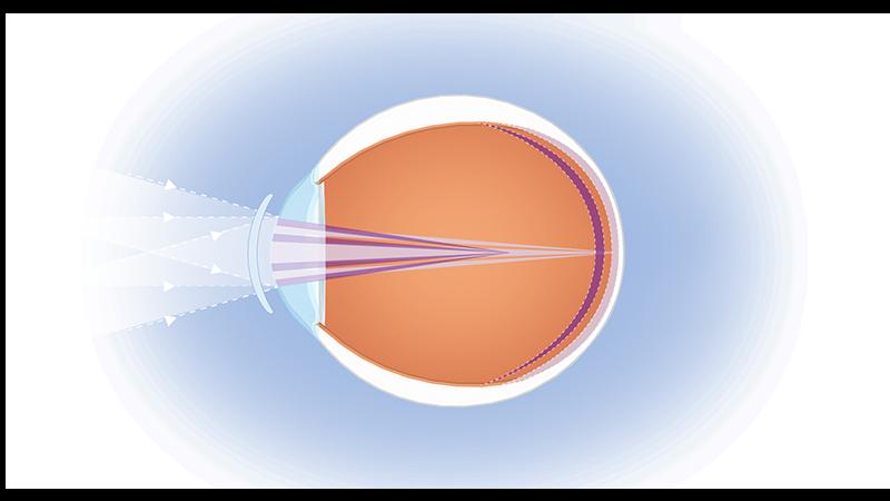 myopia progression