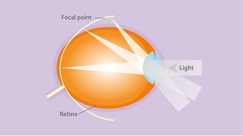 myopia 2. fokú myopia