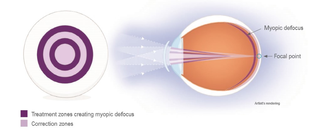 Image result for misight contact lenses